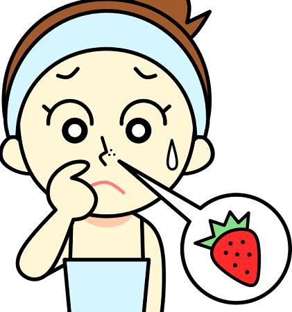 鼻のぶつぶつができてしまいイチゴのように見える女性の画像